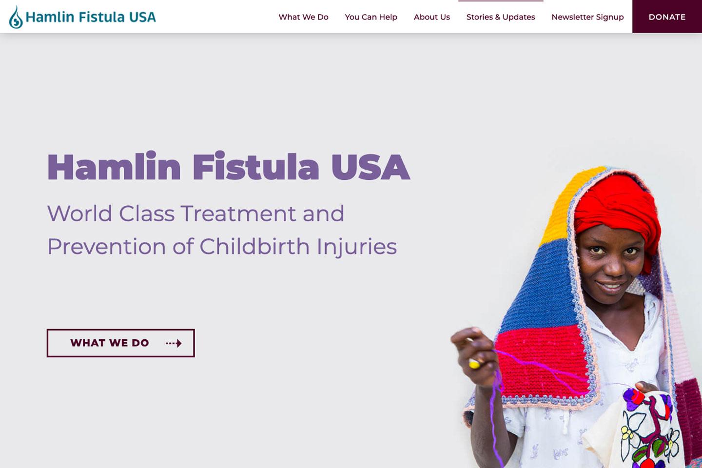 Hamlin Fistula USA